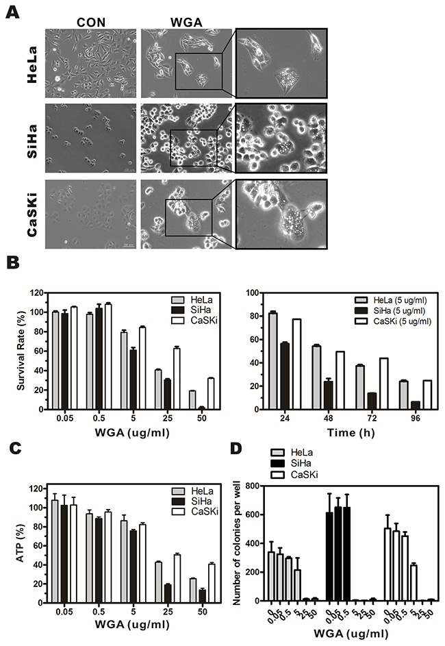 WGA induces formation of cytoplasmic vacuoles and paraptosis-like cell death in cervical carcinoma cells.