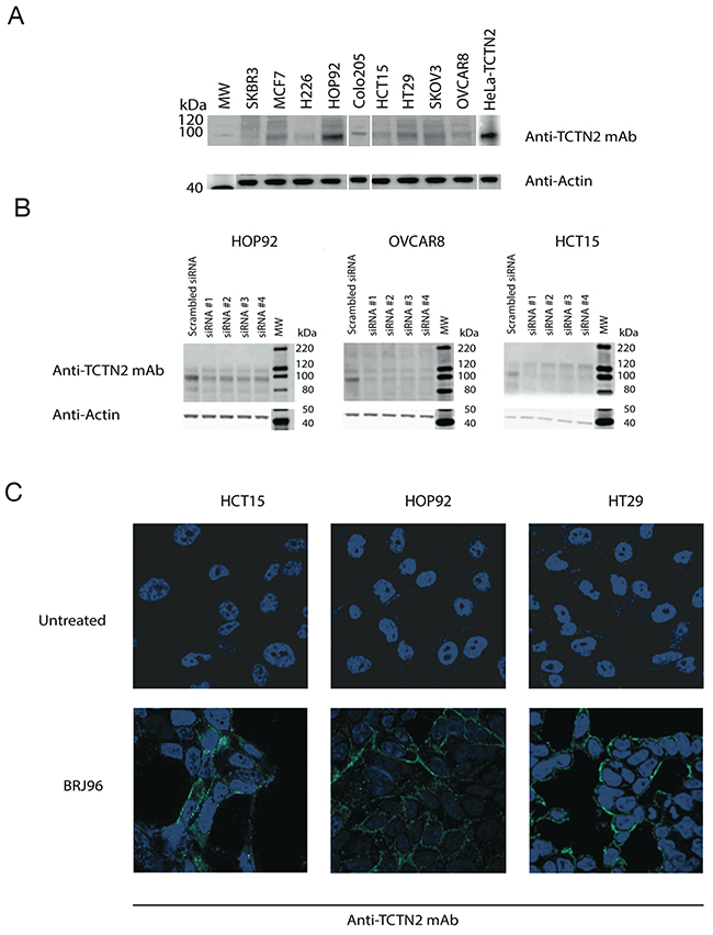 TCTN2 is expressed in cancer cell lines and localizes in the inner side of plasma membrane.