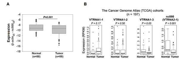 nc886 expression in clinical specimens from gastric cancer patients and TCGA cohorts.