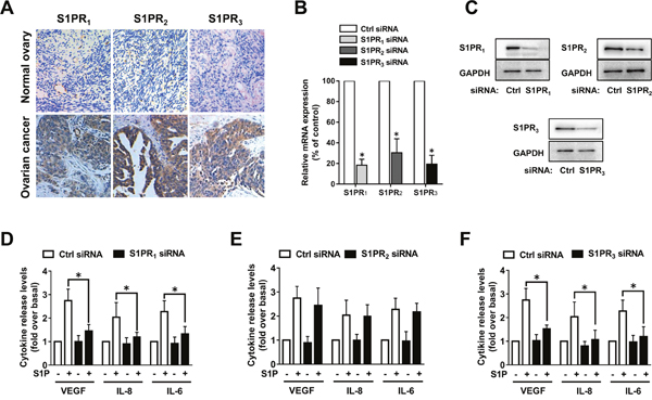 S1PR1 and S1PR3 mediate S1P-induced VEGF, IL-8 and IL-6 expression.