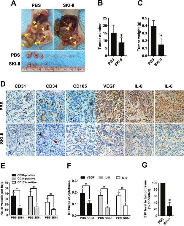 Effect of SphK blockage on angiogenesis in vivo.