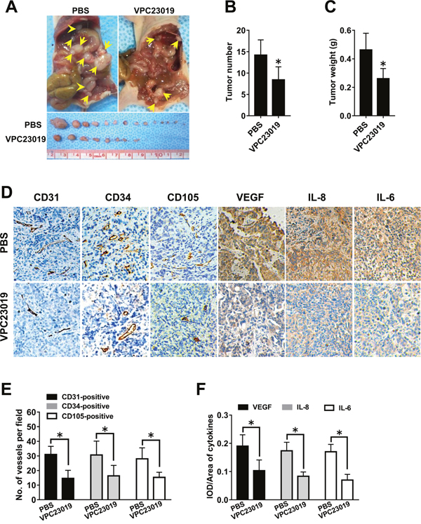 Effect of S1PR1/3 blockage on angiogenesis in vivo.