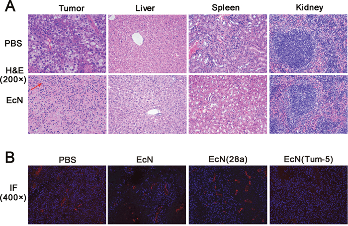 HE staining of tumor tissue sections and immunofluorescence of CD31 expression in vivo.