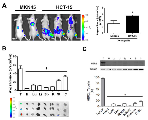 HER2 imaging in the tumors and organs of HCT-15-induced xenografts in mice.