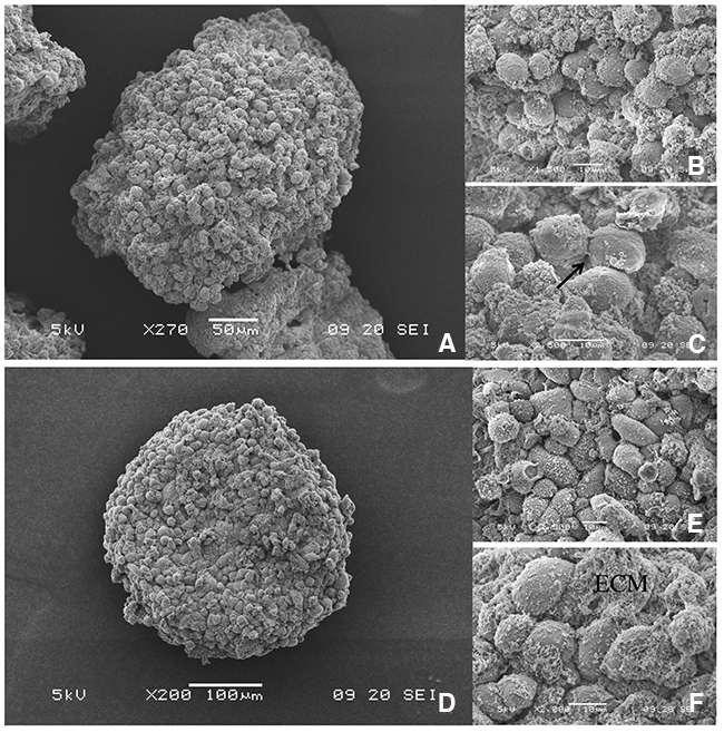 3D topology of SUM1315 and MDA-MB-231 spheroids by Scanning Electron Microscopy (SEM).