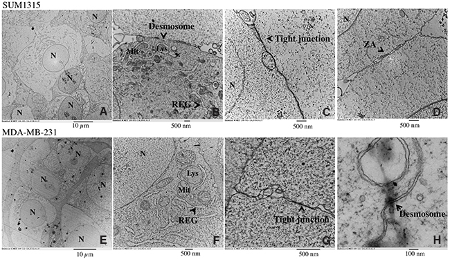 Ultrastructure of SUM1315 and MDA-MB-231 spheroids by Transmission Electron Microscopy (TEM).