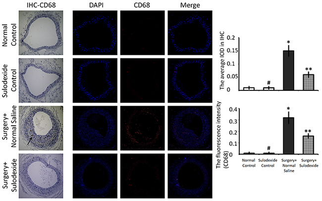 Sulodexide decreases CD68-positive inflammatory cell infiltration into blood vessels.