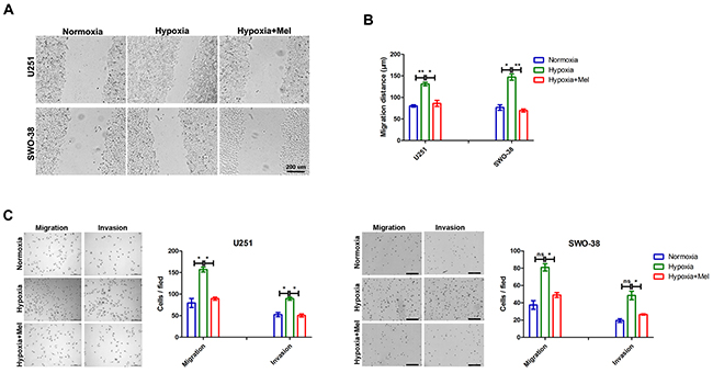 Effect of melatonin on migration and invasion of glioma cells induced by hypoxia.
