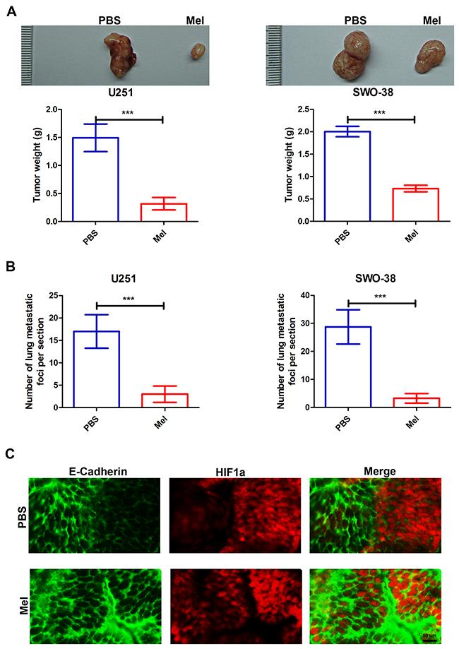 Effect of melatonin on metastasis capacities of glioma cells in vivo.