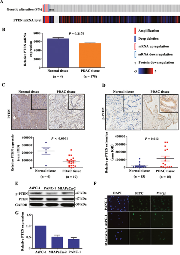 Occurrence of PTEN phosphorylation in PDAC patient tissues and cell lines.