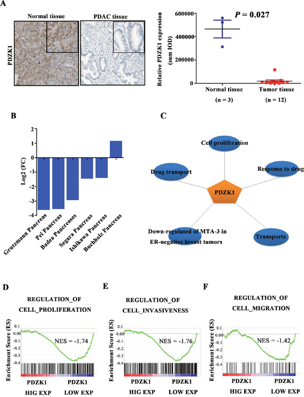 PDZK1 is down-regulated in pancreatic cancer and is associated with malignant phenotype.