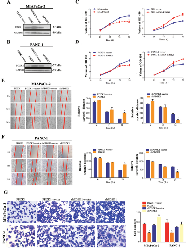 Effects of stable PDZK1 knockdown and overexpression on proliferation and migration abilities of pancreatic cancer cells in vitro.