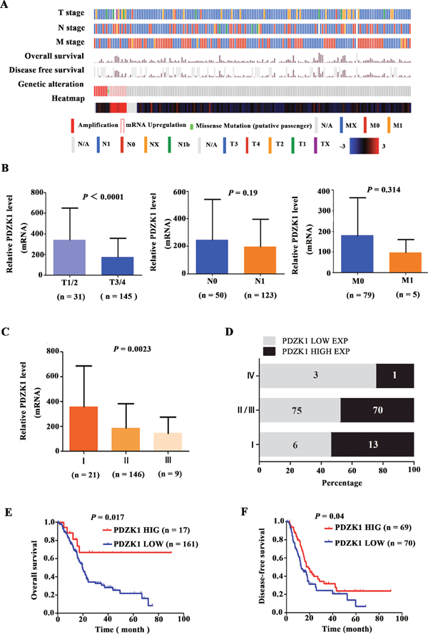 The PDZK1 expression level correlates with progression/prognosis of patients with PDAC.