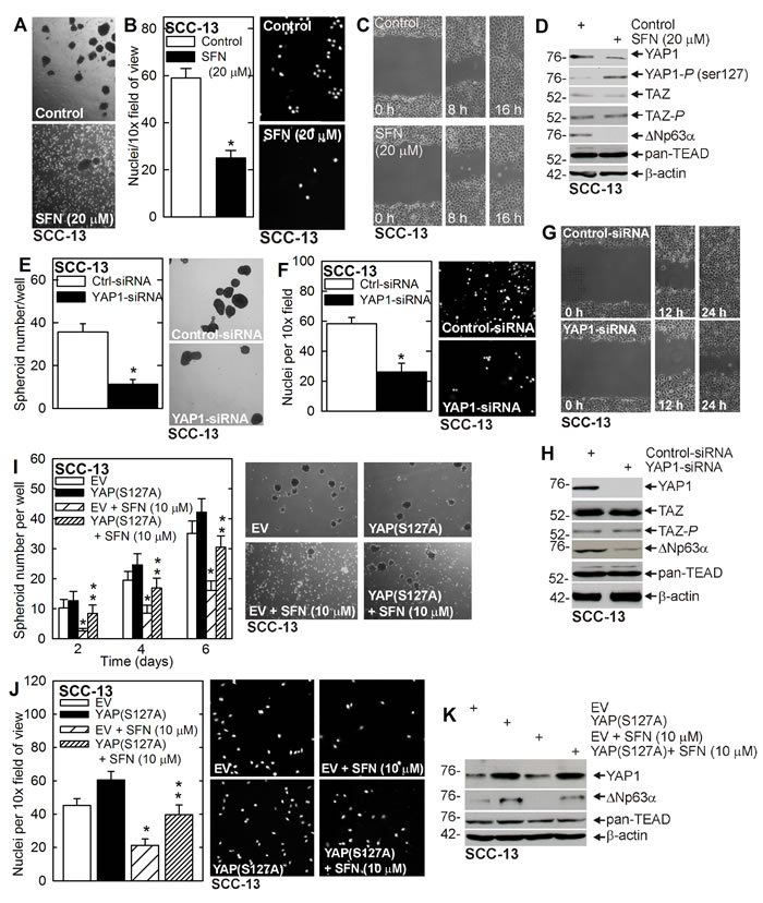 Sulforaphane targets YAP1/∆Np63α to suppress ECS cell phenotype.