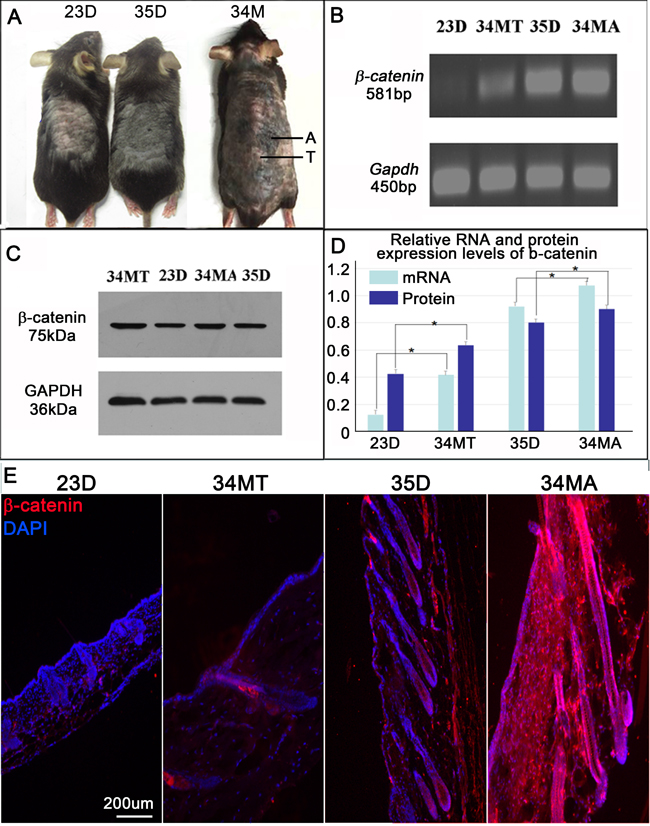 β-catenin expression is increased skin of aged mice.