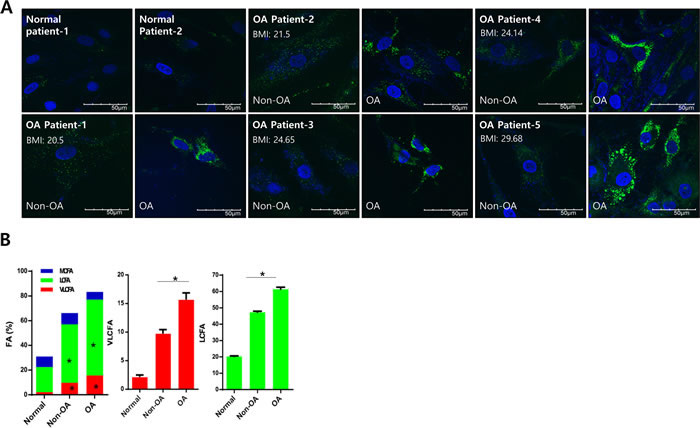 Lipid accumulation is involved in osteoarthritis pathogenesis.