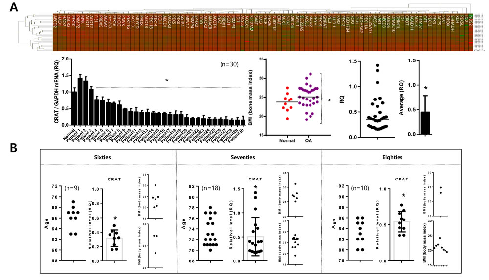 Peroxisomal gene profiling in normal and osteoarthritis chondrocytes.