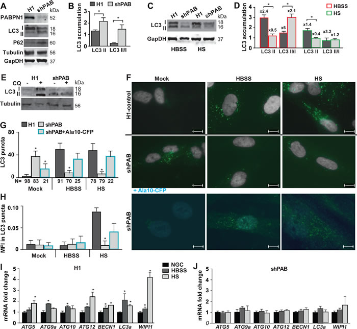 Reduced PABPN1 availability impairs autophagy in human muscle cell cultures.