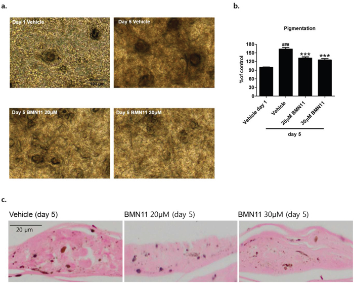 Inhibition of melanin accumulation by BMN11 in a human skin model.