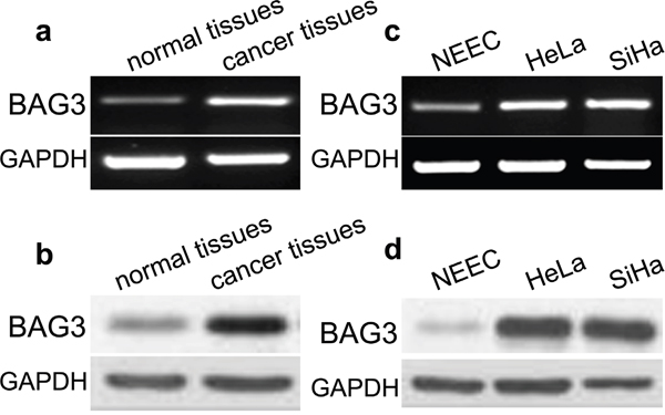 Expression of BAG3 in cervical cancer tissues and cells.
