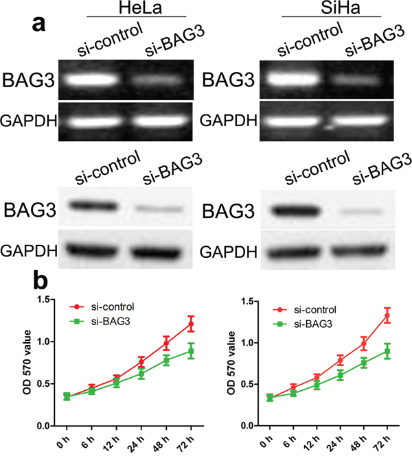 Effect of knock-down of BAG3 on cell growth of CC cell lines.