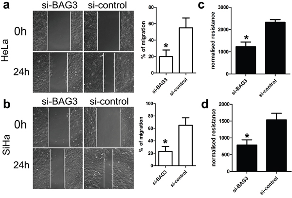 Effect of BAG3 expression on migration of HeLa and SiHa cells.