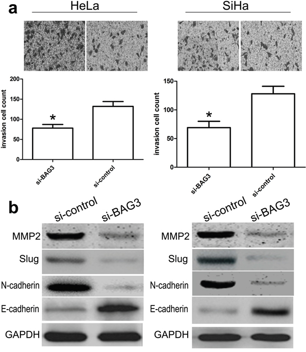 Effect of BAG3 on the invasion of CC cells.