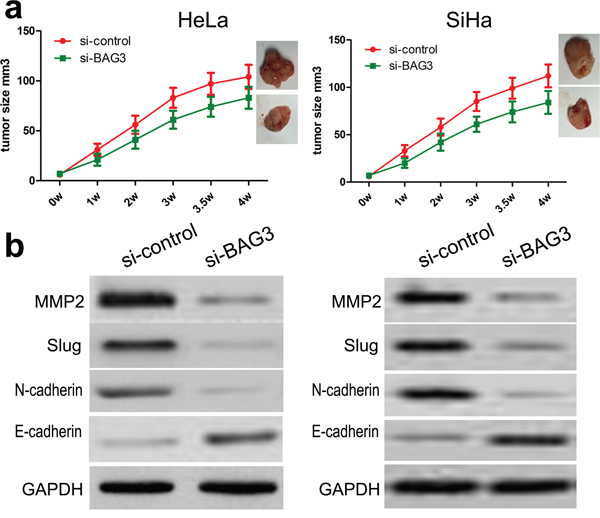 Knockdown of BAG3 suppresses HeLa and SiHa cell growth in nude mice.
