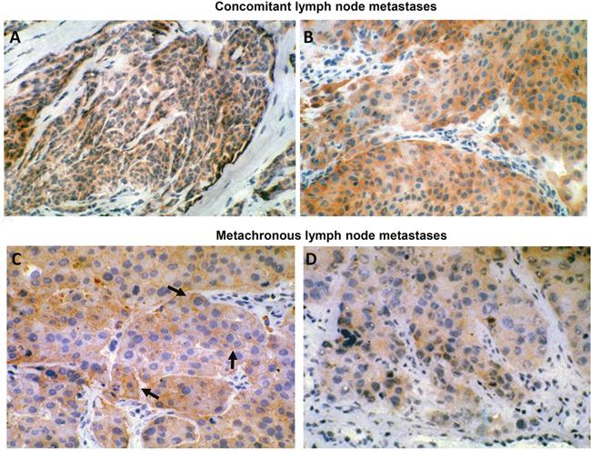 HER-3 expression in human metastatic melanoma.