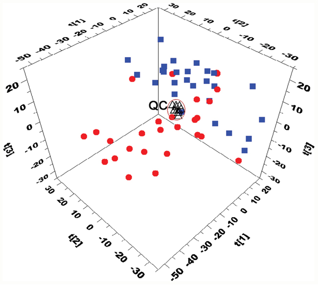 Three-dimensional PCA score plots based on the data from UHPLC-Q-TOFMS separation (■ CR patients, ● NR patinets, ΔQC).