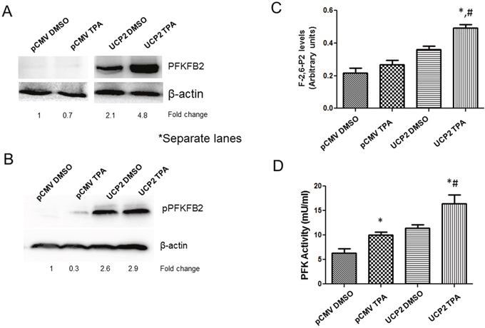 Upregulation of PFKFB2 expression in UCP2 overexpressed cells.