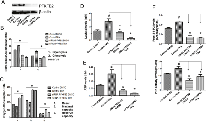 Inhibition of PFKFB2 expression dampens the shift to glycolysis in UCP2 overexpressed cells.