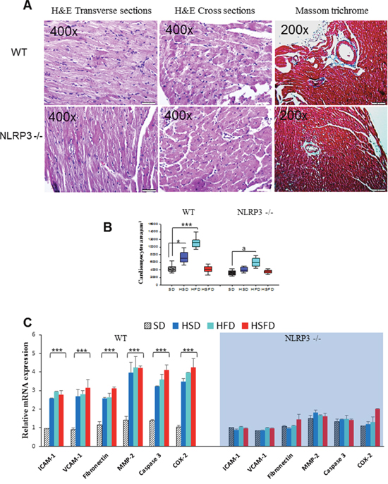 Histological analyses and gene expression changes of adhesion molecules and fibrosis markers in heart.