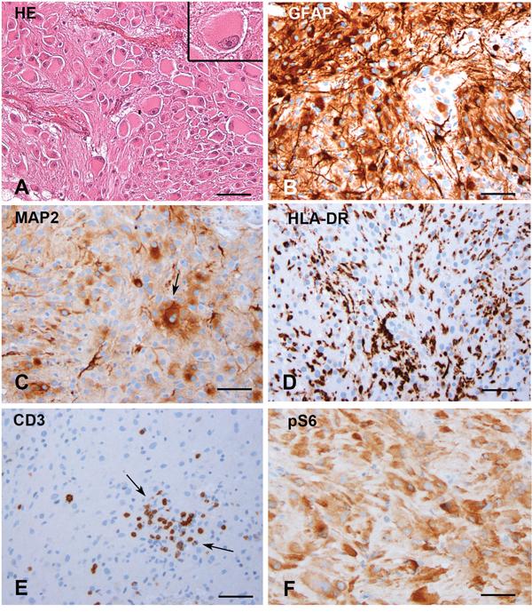 Subependymal giant cell astrocytomas (SEGAs).