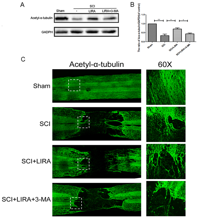 Inhibition of autophagy decreased liraglutide induced microtubule acetylation and microtubule polymerization in acute SCI.