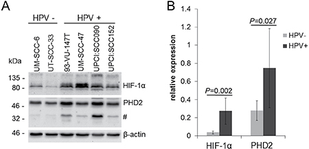 Increased HIF-1α protein levels in HPV-positive HNSCC cell lines under normoxia.