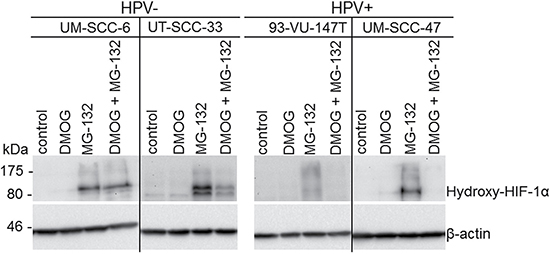 Impaired HIF-1α hydroxylation in HPV-positive HNSCC cell lines.