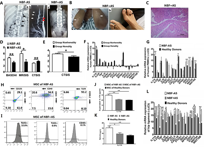 IL-17A-promoted MSC2 polarization related with new bone formation of AS patients.