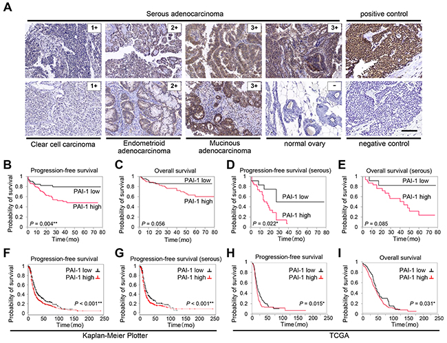 PAI-1 expression correlates with poor prognosis in patients with ovarian cancer.