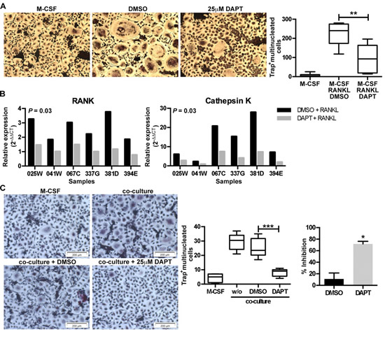 Inhibition of Notch signaling inhibits RANKL- and myeloma cell-induced osteoclastogenesis.