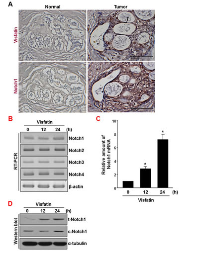 Analysis of visfatin and Notch1 expression in human breast tumor specimens.