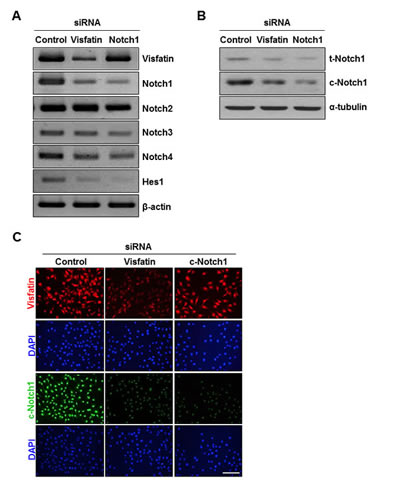 Effects of visfatin depletion on Notch1 expression.