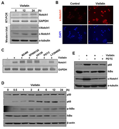 Effects of NF-κB signaling inhibition on visfatin-induced Notch1 upregulation and colony formation of breast cancer cells.