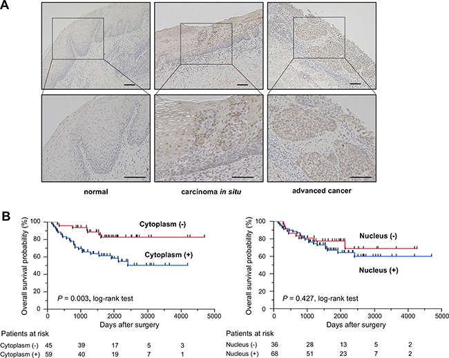 KHSRP protein expression/localization and its association with overall survival in primary ESCC tumors.
