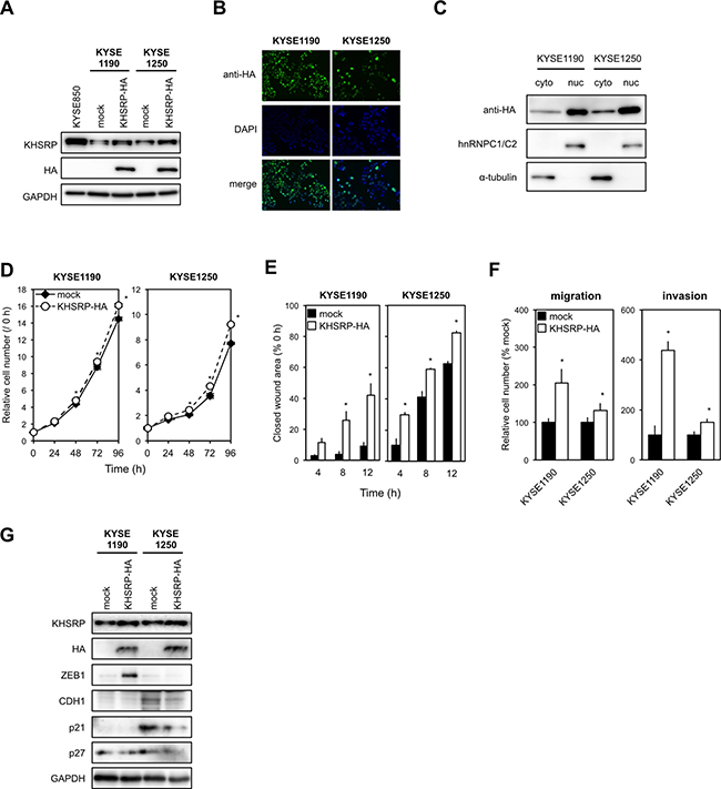 KHSRP overexpression promotes ESCC cell migration and invasion.