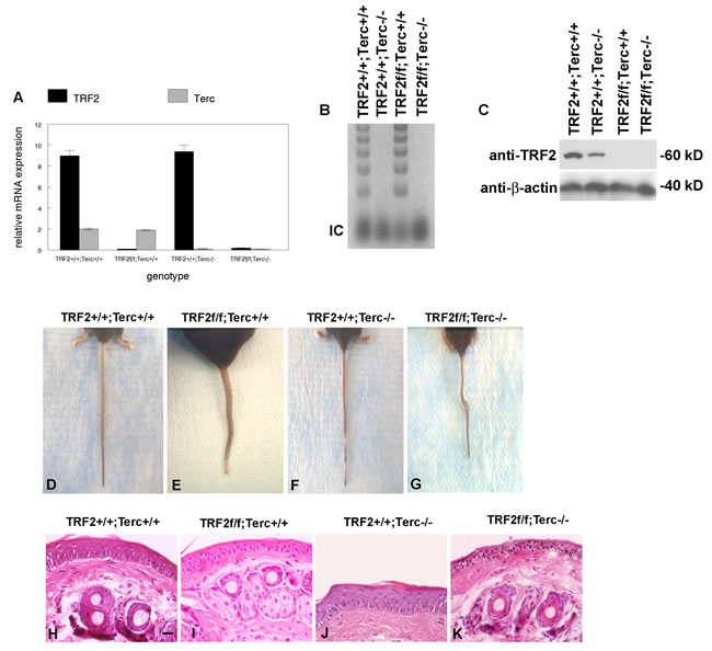 TRF2/Terc double null mutant mice exhibit features of stem cell depletion in epidermis.
