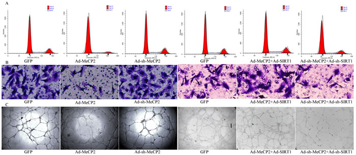 Functional alterations with overexpression or silencing by co-transfection of MeCP2 and SIRT1.