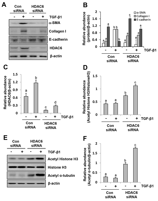 siRNA-mediated silencing of HDAC6 inhibits EMT of peritoneal mesothelial cells.