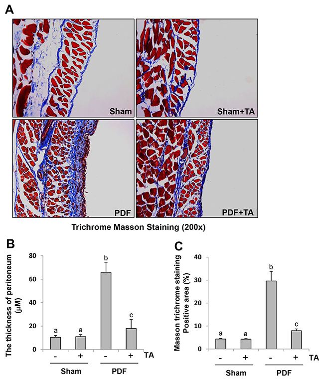 Administration of TA inhibits development of peritoneal fibrosis in a murine model of peritoneal fibrosis induced by high glucose dialysate.