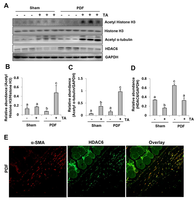 Inhibition of HDAC6 reduces histone H3 acetylation in the peritoneum of mice after exposure to high glucose dialysate.